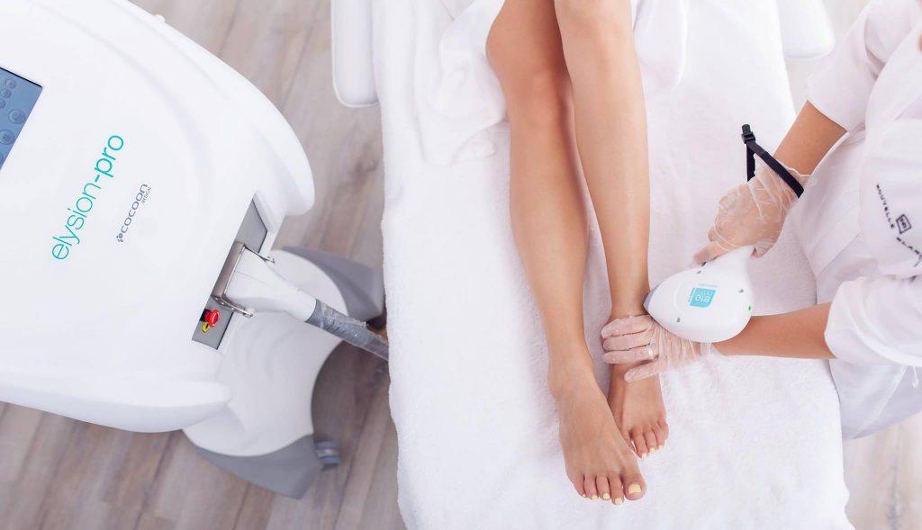 laser-hair-removal-aparat